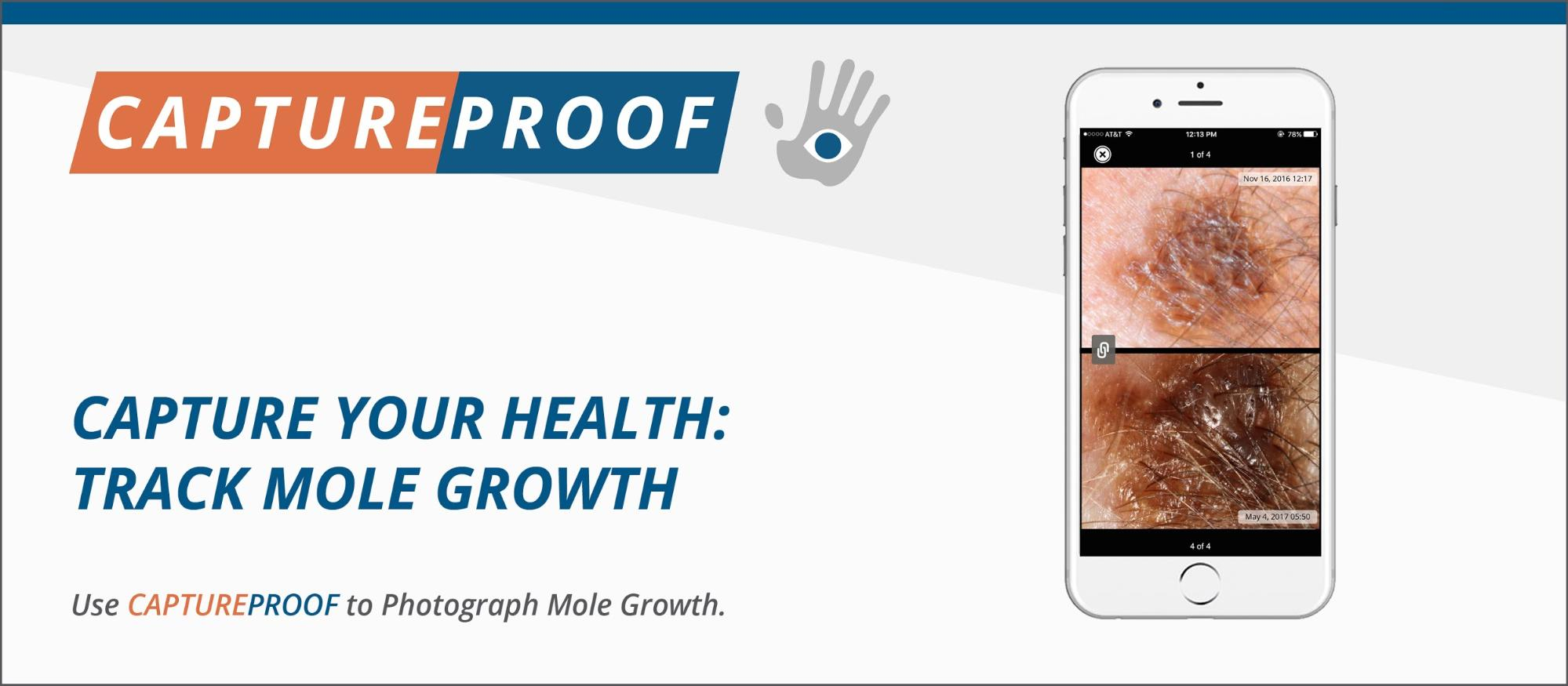 Mole Growth CAPTUREPROOF